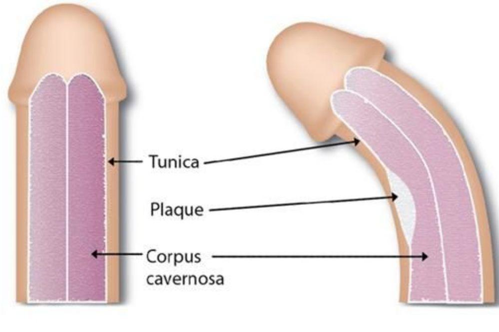 Peyronie: Curvatura del pene que afecta a 1 de cada 10 hombres